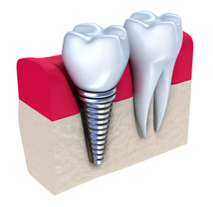 Dental Implants at Oasis Dental